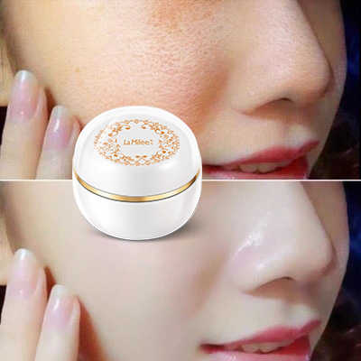 Lady skin magic ครีม Glow กระครีมกระ tan แผ่นบำรุงผิวหน้าสดใส Smooth spot remover 38g