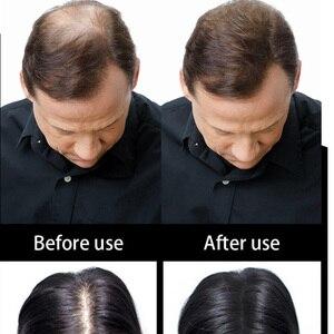 Image 2 - Sevich 100G hair Building fibers Refill + 25g ขวด + applicator hair thickener fuller ผม 10 สี
