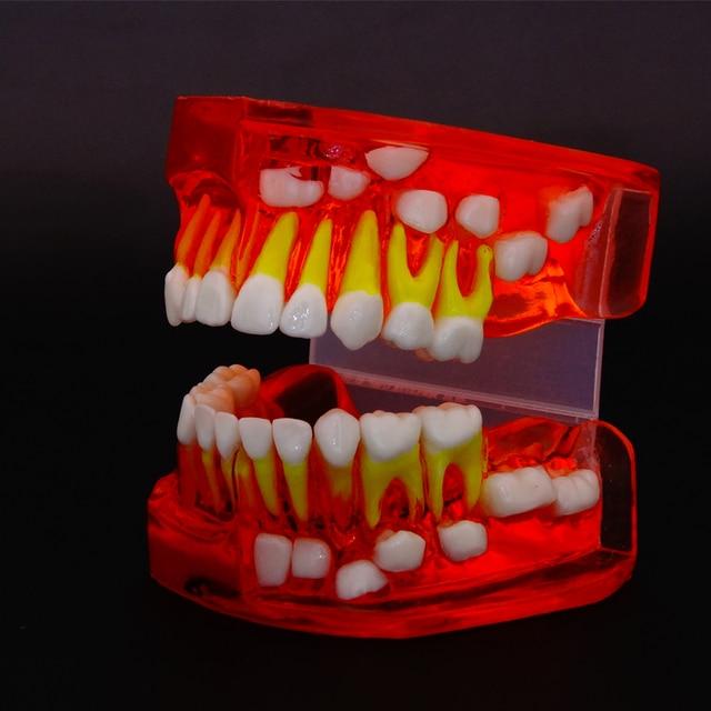 2016 Dental Tooth Teeth Anatomical Anatomy Model Odontologia Dentural Development Model 9-12 Years Old Children Dental Model