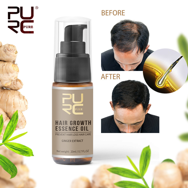 PURC 20ml Ginger Extract Hair Growth Essential Oil Repair Damage Hair Speed Promotes Hair Growth Nourish Thick Roots Hair carePURC 20ml Ginger Extract Hair Growth Essential Oil Repair Damage Hair Speed Promotes Hair Growth Nourish Thick Roots Hair care
