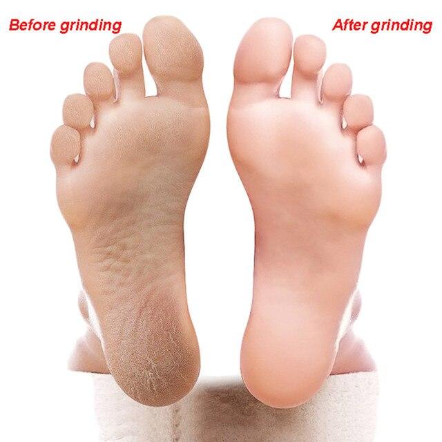 Foot Brush Foot Rasp File Pedicure Callus Remover Hard Dead Skin Scrubber Foot Brush Foot Rasp File and Callus Remover Brush New 5