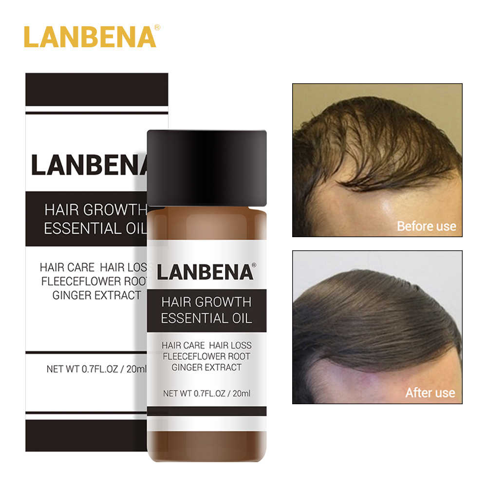 LANBENA Hair Growth Essence Products Essential Oil Fast Powerful Serum Treatment Preventing Hair Loss Hair Care Andrea 20ml