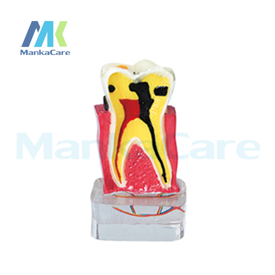 Manka Care - 4 Times periodontal with Nerve/Made of imported resin Oral Model Teeth Tooth Model