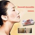 La Medicina china crema Antibacteriana de seguridad Psoriasis Eczema Ungüento Crema Adecuada Todas Las Enfermedades de La Piel Eczema Tratamiento