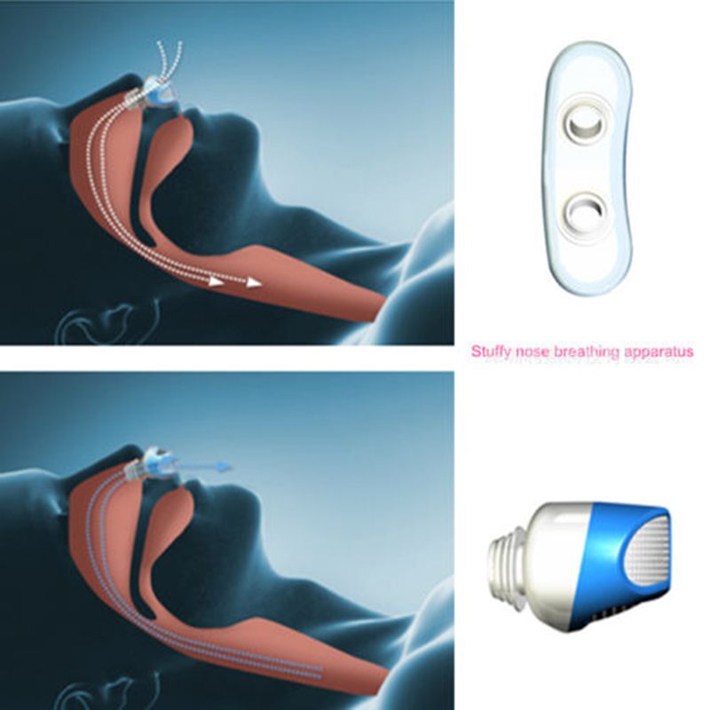 Stop-Snoring-Nose-Breathing-Apparatus-Air-Purifier-Stop-Grinding-Relieve-Snoring-Men-Women-Health-Sleep-Aid (1)