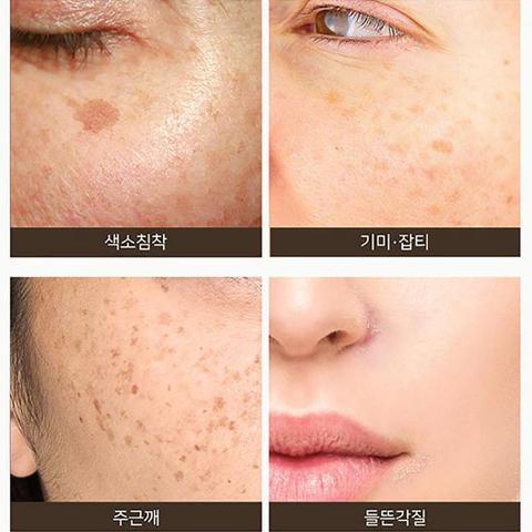 SOME BY MI AHA BHA PHA 14 Days Super Miracle Spot All Kill Cream 30ml Whitening Cream Remove Freckle Melasma Acne Spots Melanin Karachi