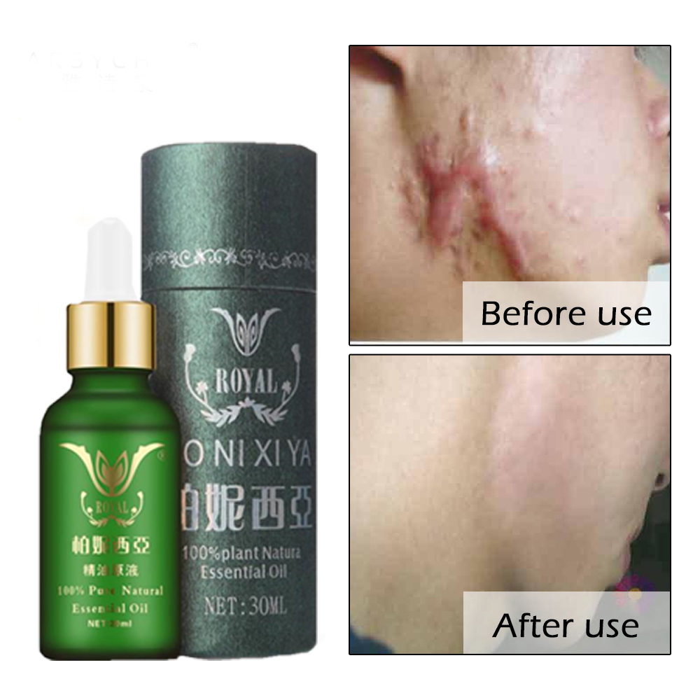 Face Care Essential Oil Acne Scar Spots Removal Skin Care Whitening Remove Scars Acne Repair Face Cream Essence Acne Treatment