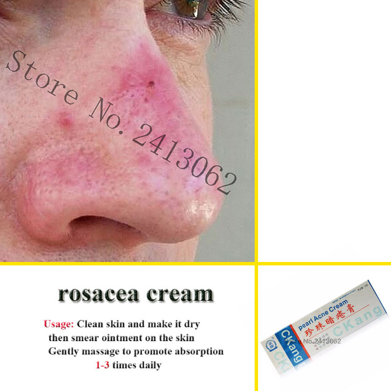 Rosacea Cream Red Nose Ointment Remove Blackhead Acne Cream Skin Care Herbal Anti Acne And Mite Acne Rosacea Treat Shrink Pores