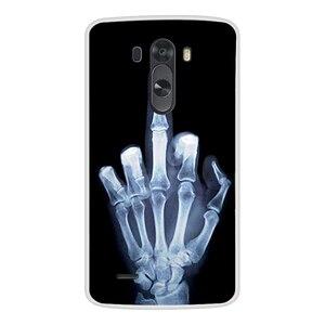 Image 5 - מקרה טלפון עבור LG G3 רך סיליקון TPU חמוד חתול פרח צבוע חזרה כיסוי עבור LG G3 D850 D851 D855 מקרה