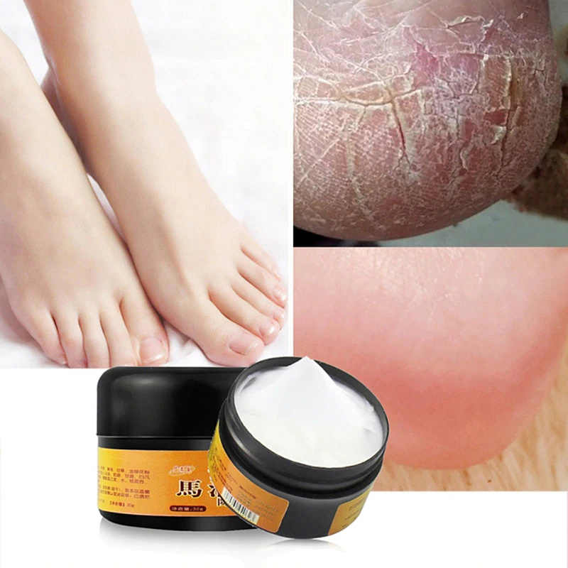 Peeling Repair Foot Massage Cream for Athlete Feet Blister Itch Anti-cracking Foot Care 30g Natural Horse Oil Hand Foot  TSLM1