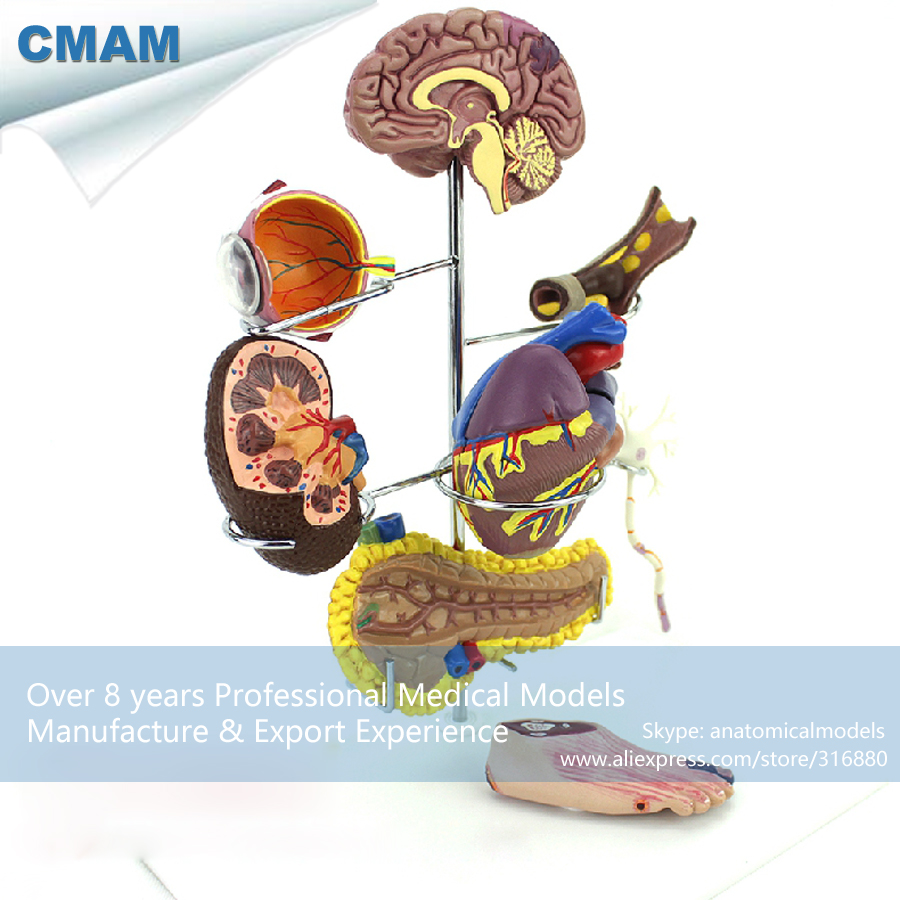 12555 CMAM-HEART22 Medical Anatomical Human Diabetes Model human anatomical male genital urinary pelvic system dissect medical organ model school hospital