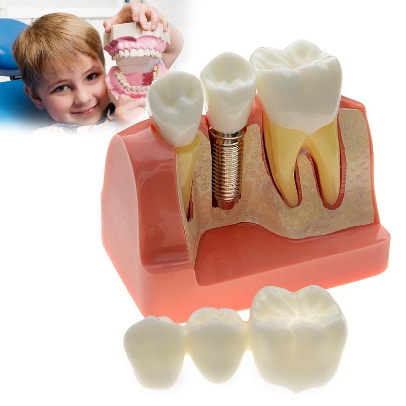 4 Times Dental Implant Disease Teeth Model With Restoration Bridge Crown For Medical Science Teaching Dentist Tools soarday dental endodontic restoration model teaching communication model pathological display dental caries