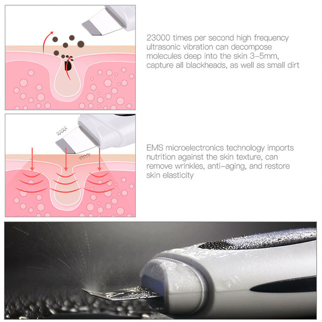 ULTRASOUND MICROELECTRONIC BLACKHEAD SKIN REMOVAL