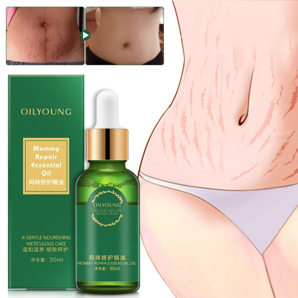 Stretch Mark Repair Oil Nourishing Body Skin Quickly Remove Stretch Marks Mommy Body Repair Essential Oil