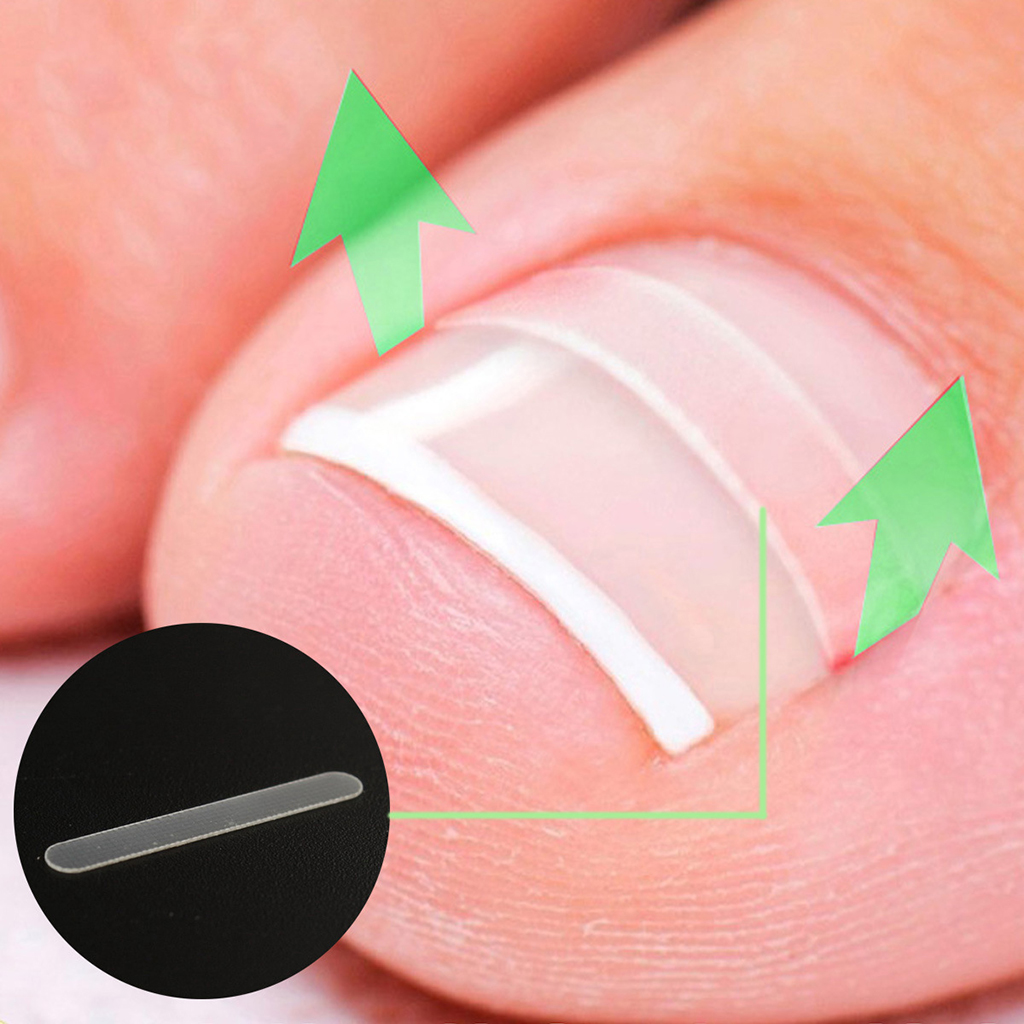 10Pcs Ingrown Toenail Straightening Clip Curved Brace Toenails Correction Tool Foot Nail Care Accessories For Adult