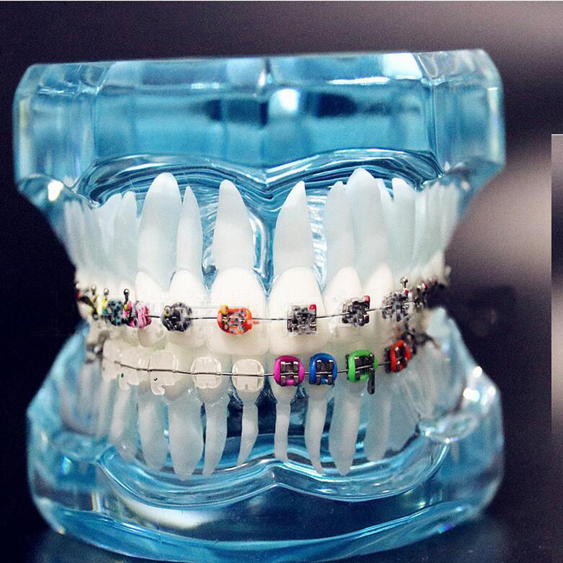Transparent Dental Orthodontic Mallocclusion Model with Brackets Archwire buccal tube Tooth Extraction for Patient Communication transparent dental orthodontic mallocclusion model with brackets archwire buccal tube tooth extraction for patient communication
