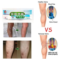 1boxes Chinese Traditional herbal medicine Patches Cure Spider Veins Varicose Treatment Plaster Varicose Veins Vasculitis Natura Body Self Tanners & Bronzers