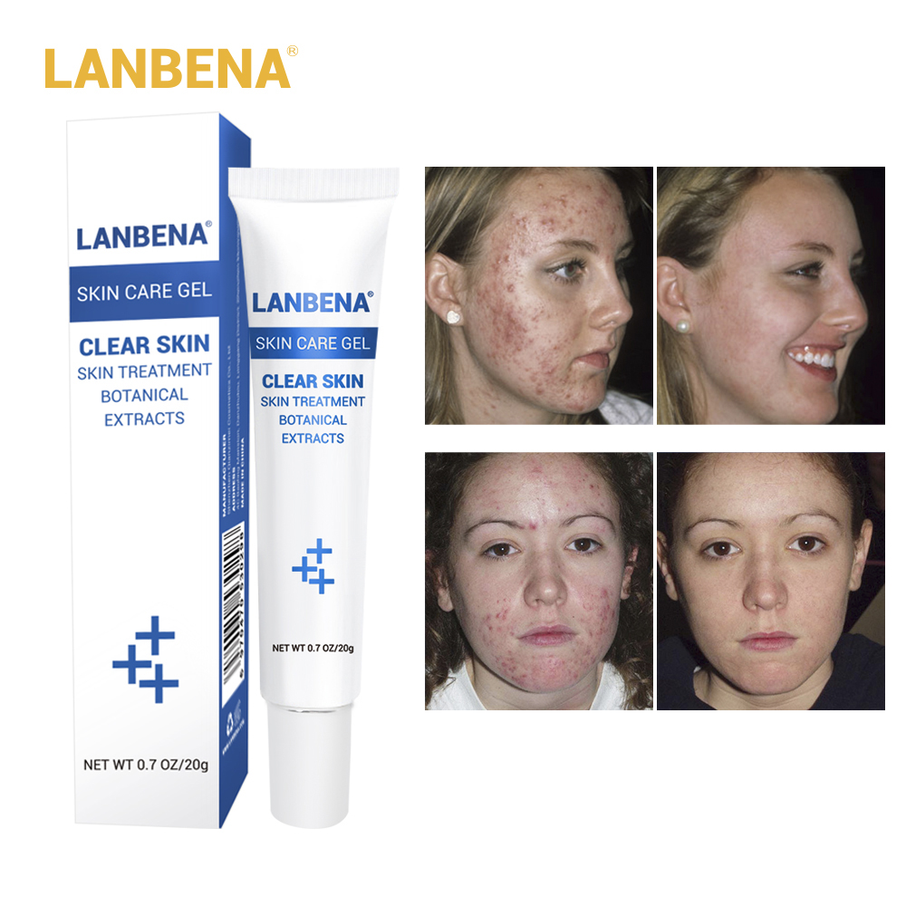 LANBENA 20g Cleaning Acne Treatment Gel Acne Cream Blackhead Remover Acne Spots Face Acne Scars Skin Care Repair Pimple Cream