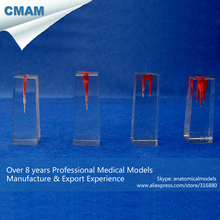 CMAM-TOOTH12 Red-Stained Root Canals in Transparent Block