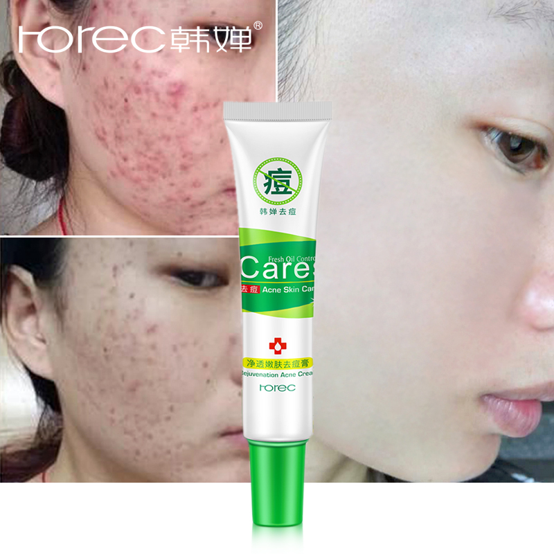 ROREC Rejuvenation Acne Cream Anti Acne Treatment Scar Removal Gel Whitening Moisturizing Shrink Pores Beauty For Face Skin Care 60g brand bioaqua silk protein deep moisturizing face cream shrink pores skin care anti wrinkle cream face care whitening cream