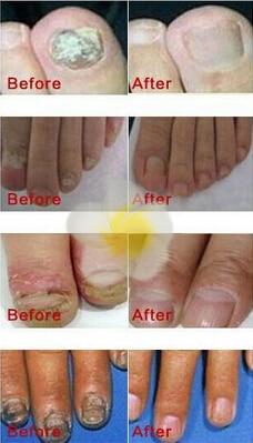 Kräuterpilz Nagelbehandlung ätherisches Öl Hand und Fuß Whitening - Nagel Kunst - Foto 3