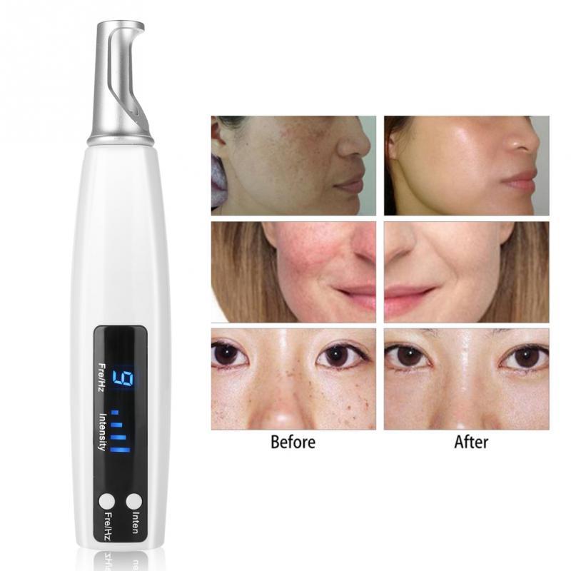 Upgraded Picosecond Laser Pen Pulse Light Tattoo Removal Pen Freckle Acne Mole Dark Spot Pigment Tattoo
