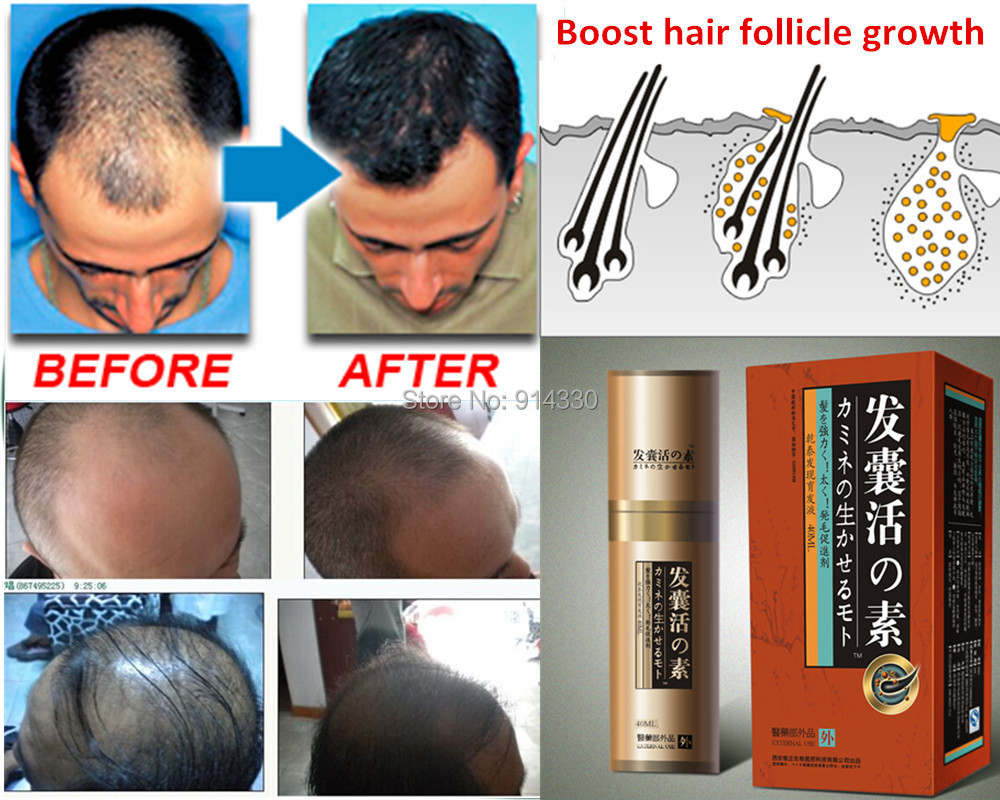 40ml/Pack Boost Hair growth loss product Hair growth product natural remedies anti hair loss treatment fast hair grow bioelectric therapy device prostatitis treatment natural remedies