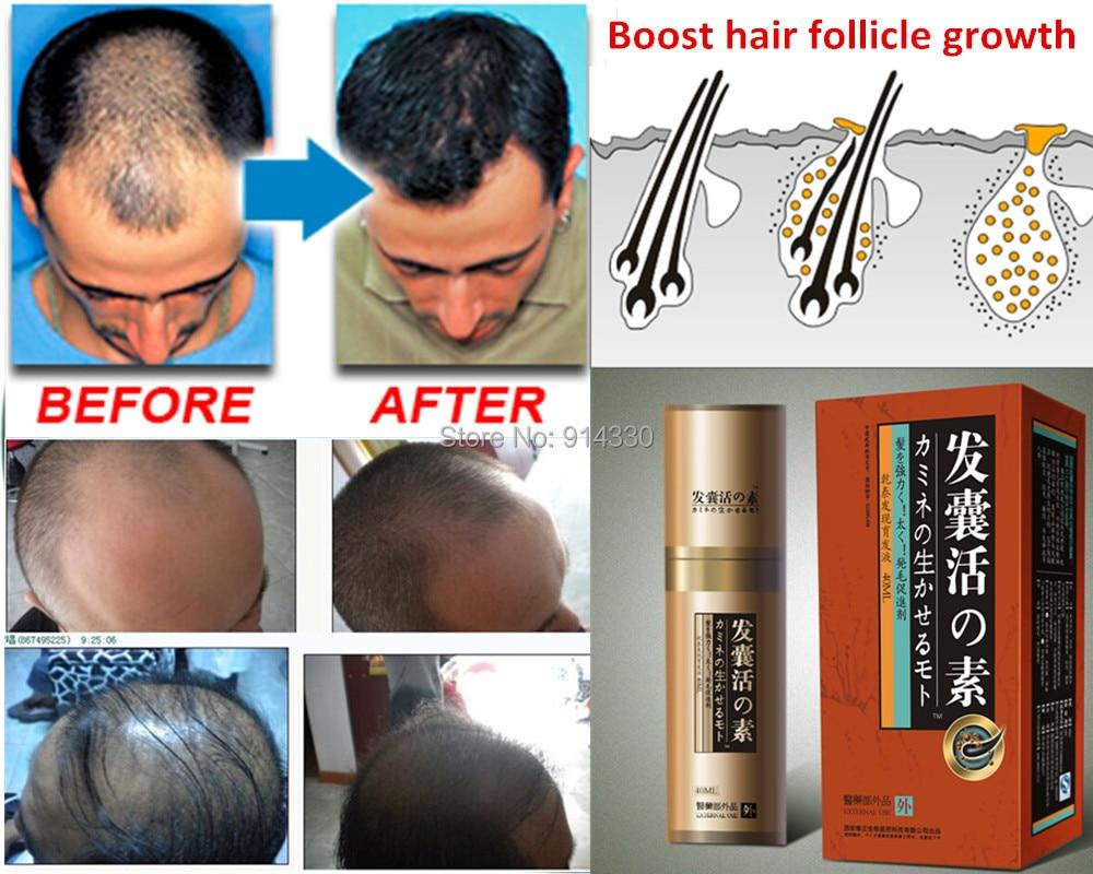 40ml/Pack Boost Hair growth loss product Hair growth product natural remedies anti hair loss treatment fast hair grow