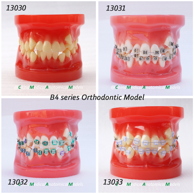 DH/13030, Orthodontic Model, 28 tooth, Dentist Training Oral Dental Orthodontic Model, China Medical Anatomical Model