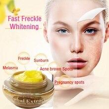 3pcs Herbal Whitening Cream Set Removal Freckle melasma pigment Melanin Sunburn
