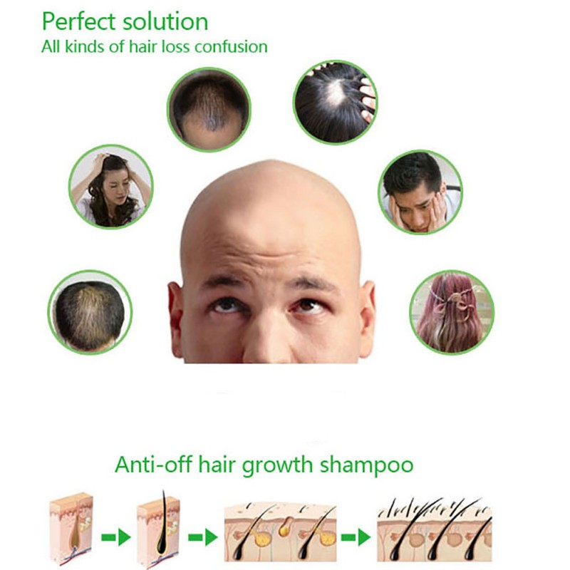 200ml Herbal Hair Growth Products Hair Loss Shampoo Improve Hair Quality Natural Extract Shampoo Hair Care 8