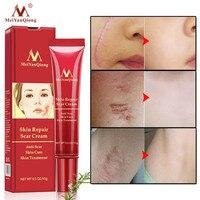 Acne Scar Removal Cream Skin Repair Face Cream Acne Spots Acne Treatment Blackhead Whitening Cream Anti Scar Stretch Marks 15g Beauty Essentials