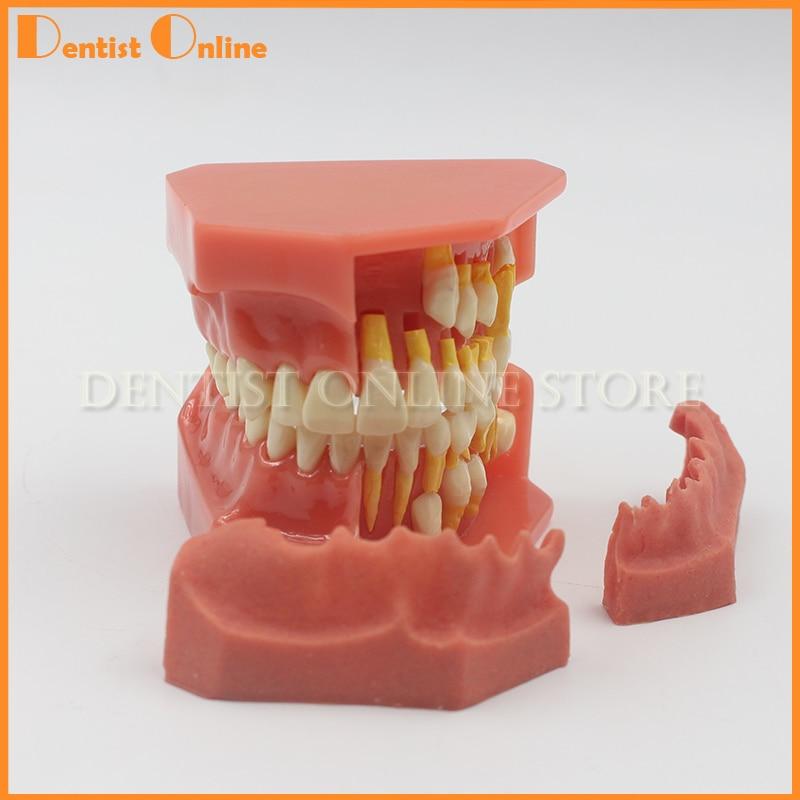 Enfants Dent Permanente Modèle Alternative Dents À Feuilles Caduques Modèle Amovible Démonstration Pour Enfants Étudiant Dentiste Produit