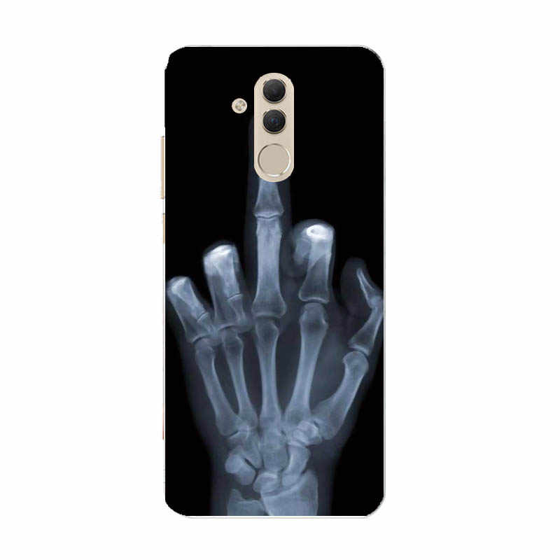 Zachte siliconen case Voor Huawei Mate 20 Lite Gevallen 6.3 inch Transparante Siliconen Telefoon Voor Huawei Mate 20 Lite Cover coque Capa