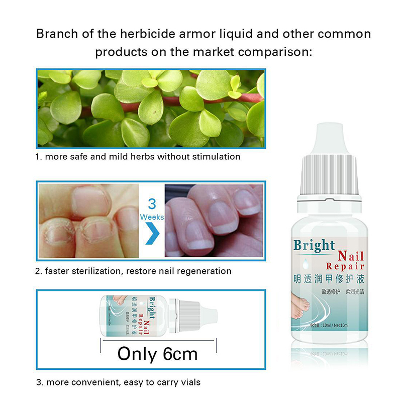 10ML Fungal Nail Treatment Essence Nail Foot Whitening Toe Nail Fungus Removal Feet Care Nail Gel for Onychomycosis TSLM2 2