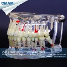 CMAM-DT4P03-1 Dental Patient Model Transparent Tooth Disease Adult Jaw Anatomy Model