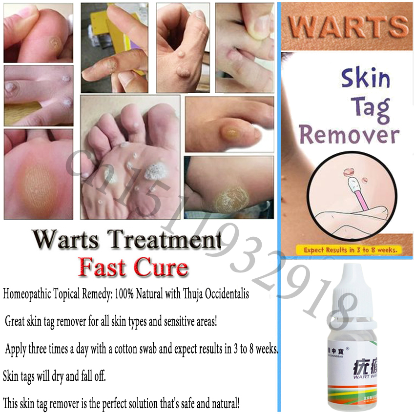 US $1 29 30% OFF Foot Corn Treatment Skin Tag Warts Removal Plantar Warts  Pomada De Verruga Foot Care Medical Plaster Ointment 10ml-in Feet from