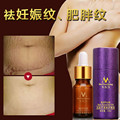 Powerful To Scar Essential Oil Skin Care Treatment Cream For Scar Repair skin Moisturizing Whitening Oil Control Acne