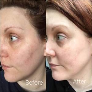 Image 5 - Timeless Serum Vitam B5 Hyaluronic 20% VITAMIN C + E Ferulic Acid Serum 1 OZ Antioxidant Whitening Face CEF Serum Anti Wrinkle
