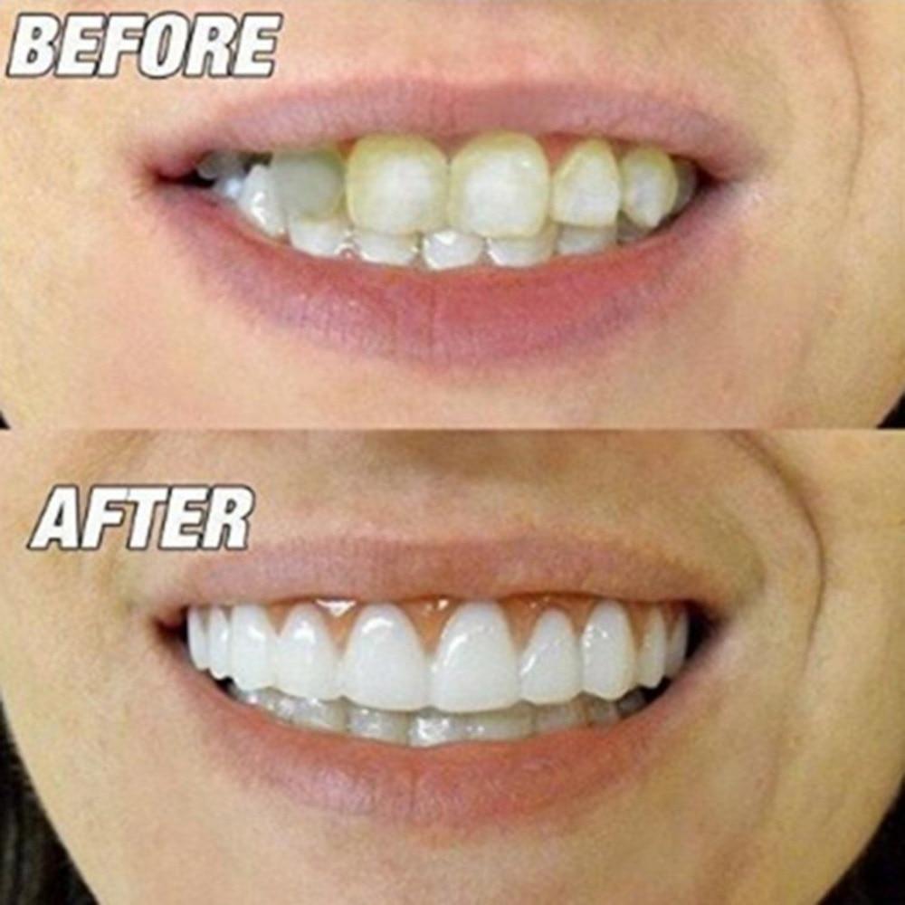Comfortable Silicone Perfect Smile Veneers Men Women Teeth Upper Cosmetic Veneer Tooth Cover Beauty Tool Teeth Whitening new