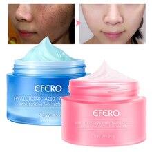 Snail Cream Remove Freckles Cream Skin Whitening Face Cream Moisturizer Day Cream Acne Dark Spot Wrinkle Remover Whitening Serum