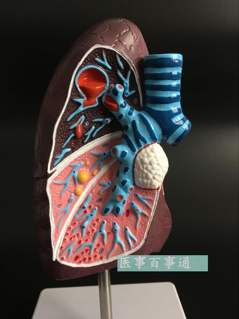 Menschmodell Lunge anatomie modell der menschlichen läsionen ...