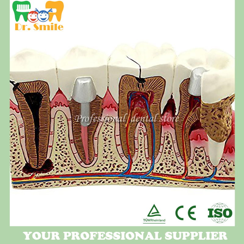 Caries dent modèle dentiste Patient Communication anatomie modèle dentisterie détails riches matériel pédagogique