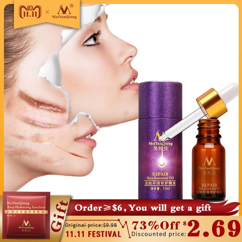 купить Scar Repair Skin Essential Oil Lavender Essence Skin Care Natural Pure Remove Ance Burn Strentch Marks Scar Removal Treatment по цене 294.45 рублей
