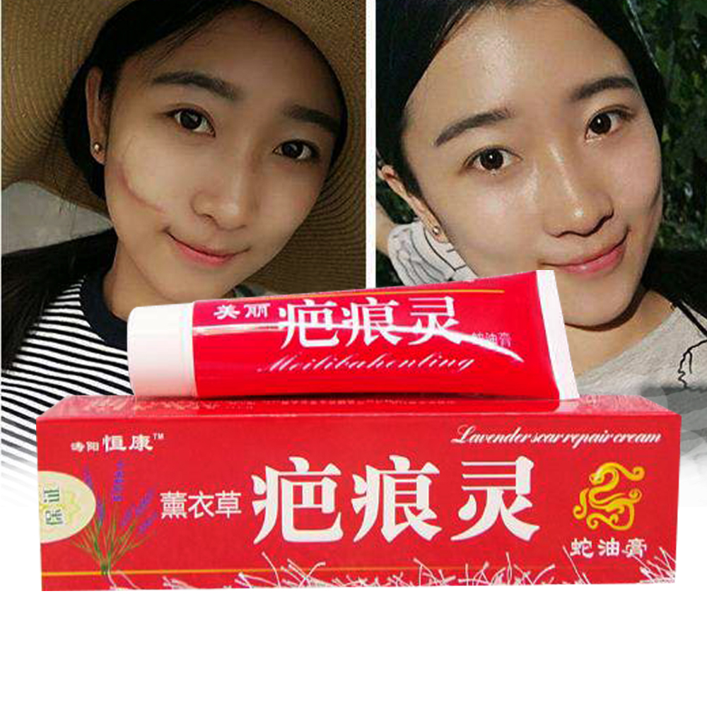 Skin Body Massage Cream For Stetch Mark Pegnancy Sar Removal Cream For Obesity Line Wrinkles Massage Plaster Cream D006