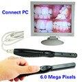 6.0 Mega pixels câmera dental Intraoral verifique digital micro Câmera USB 2.0 endoscópio dental