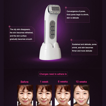 Radio Frequency Lifting Face Remove Wrinkles Skin Care Beauty Massager Tightening Device SDFA88