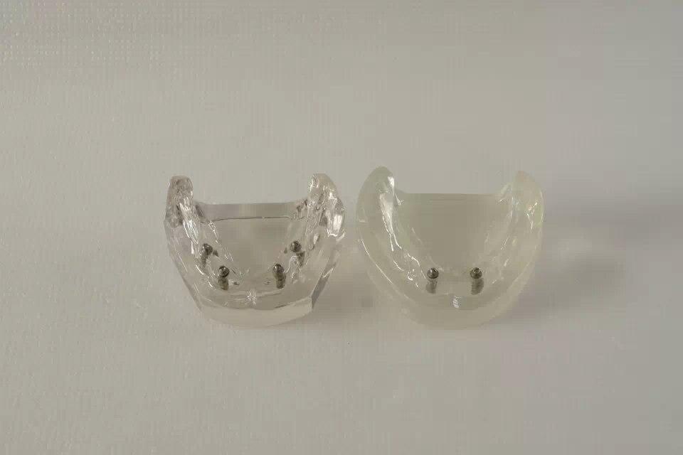 Free Shipping 2016 Good Quality Implant transparent implant model 2 pcs implants,dental model,patiention model shaveta kaushal and atamjit singh pal dental implants and its design
