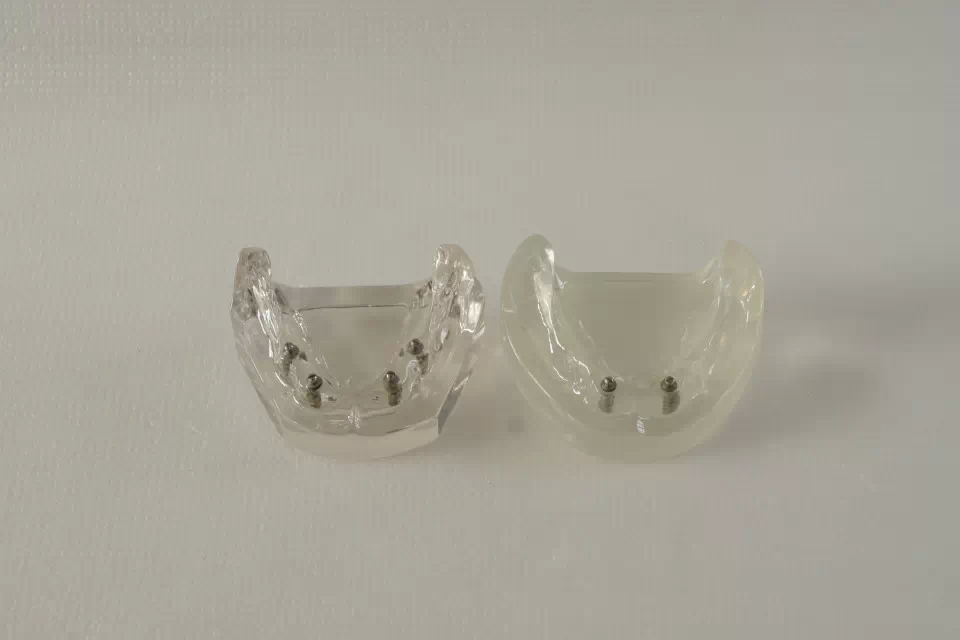 Free Shipping Good Quality Implant transparent implant model 2 pcs implants,dental model,patiention model dental overdenture inferior with 2 implants demo model study model