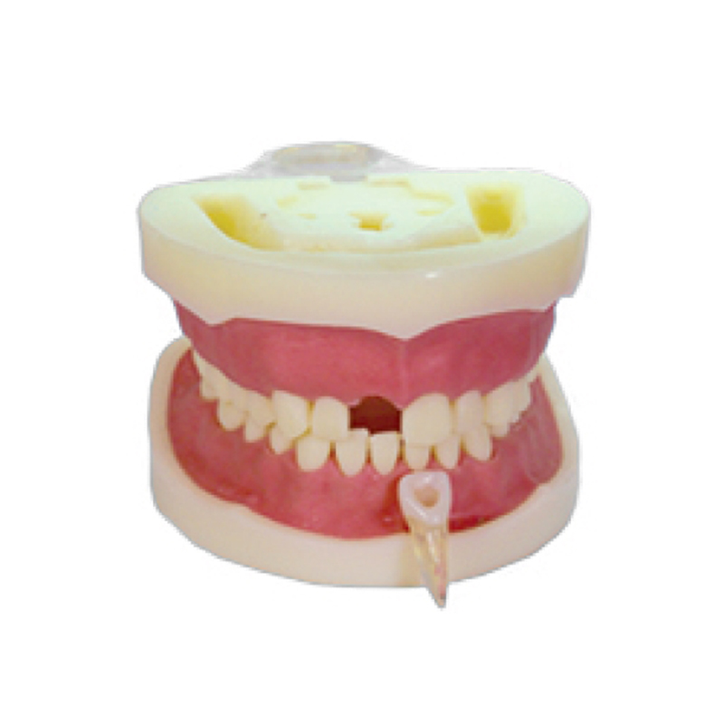 The teeth with root canal students to practice root canal preparation and filling actually krishen kumar bamzai and vishal singh perovskite ceramics preparation characterization and properties